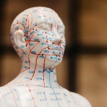 Beneficios de la acupuntura: ¿Qué es y para qué sirve?