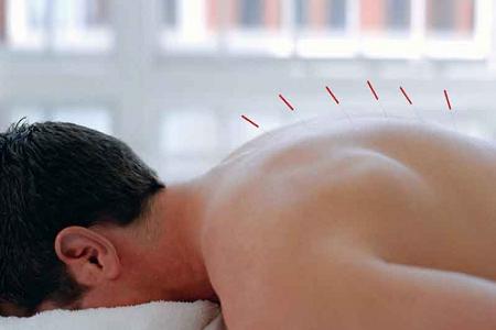 acupuntura en barcelona